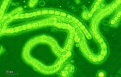 Cyanobacteria: responsible for the build-up of oxygen in the Earth's atmosphere, by Doc. RNDr. Josef Reischig, CSc. CC BY-SA 3.0.